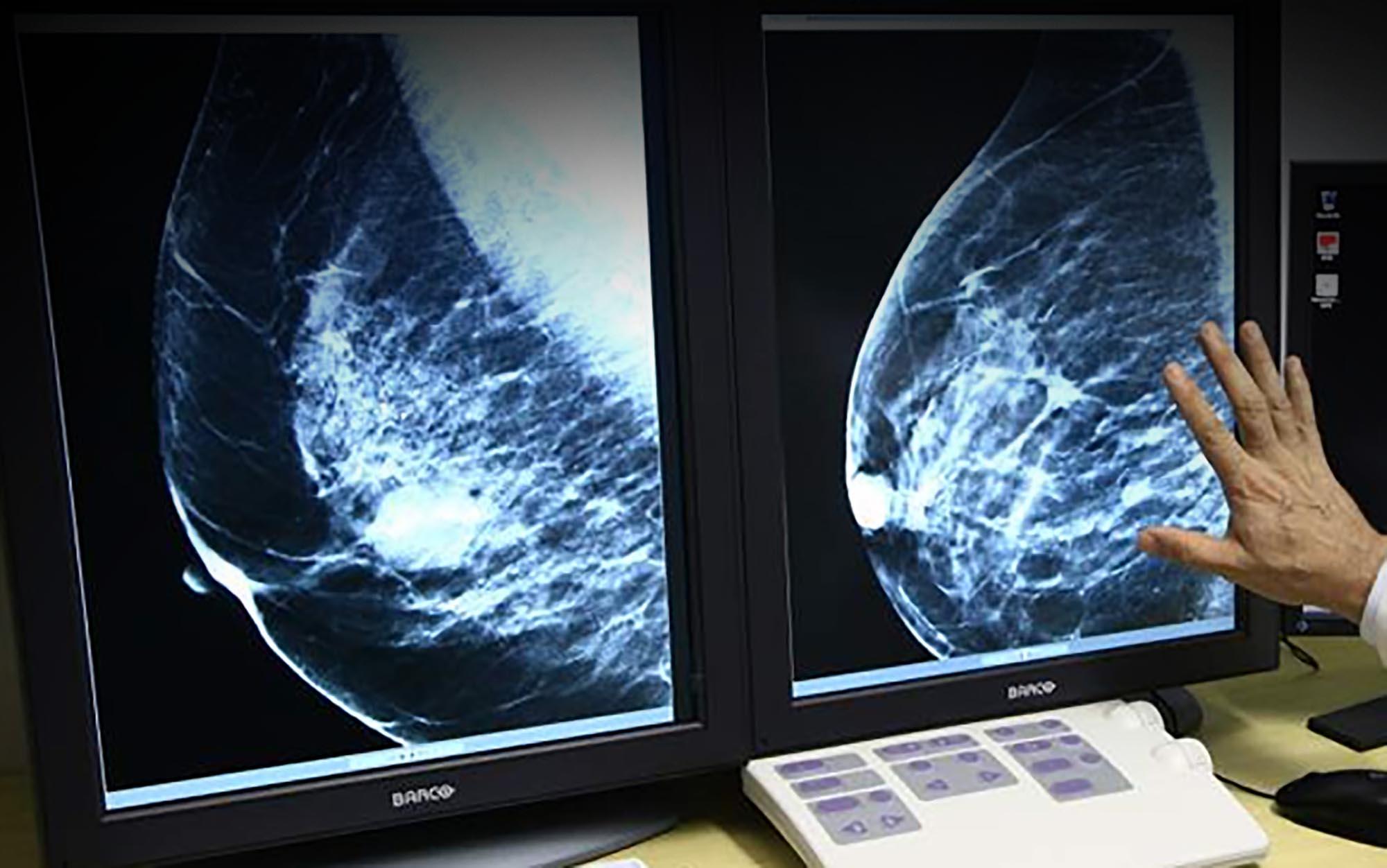 mamografia3D_30112015_consalud